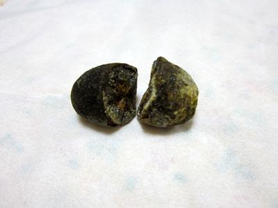 これが摘出した胆石